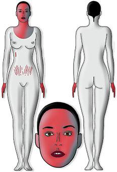 zones traitement mesolift toulouse