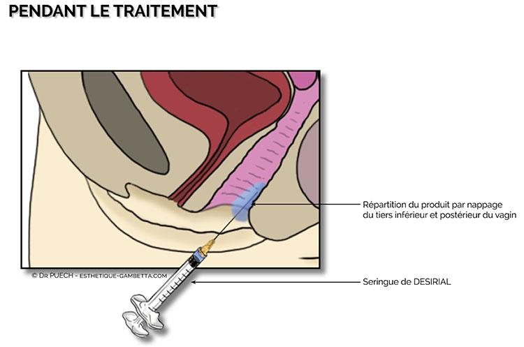 injection vulvaire de désirial