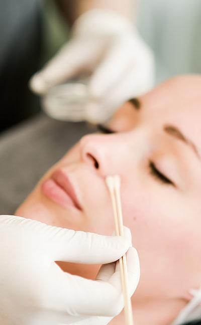 peeling dermatologique Toulouse