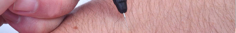 épilation électrique electrolyse