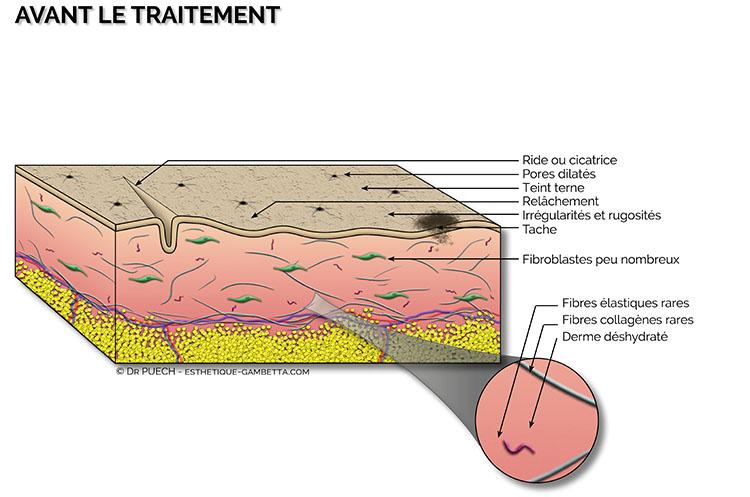 peeling superficiel dermatologique