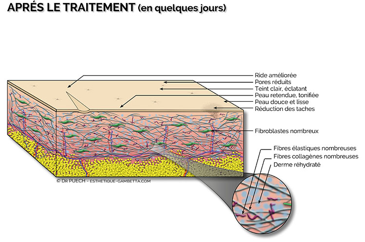 pelling peau superficiel ou moyen