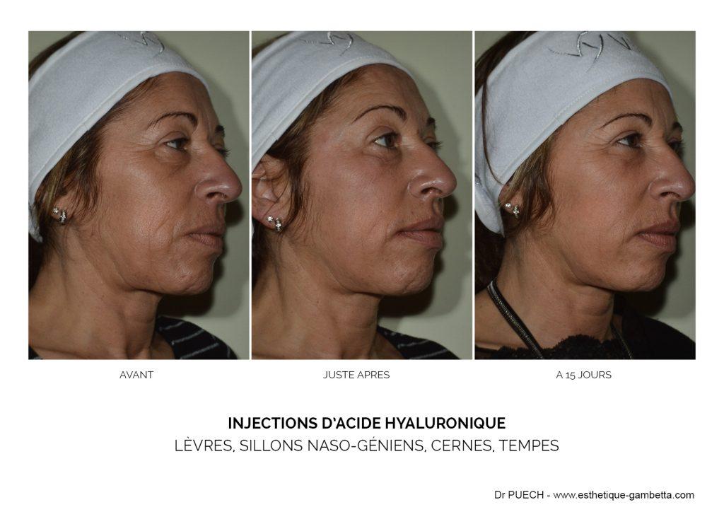 injections comblements acide hyaluronique Foix