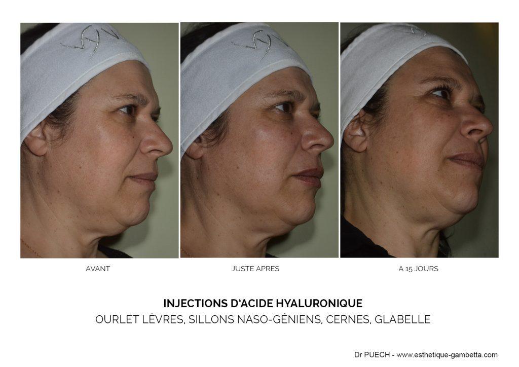 injection acide hyaluronique cernes face visage levres Toulouse