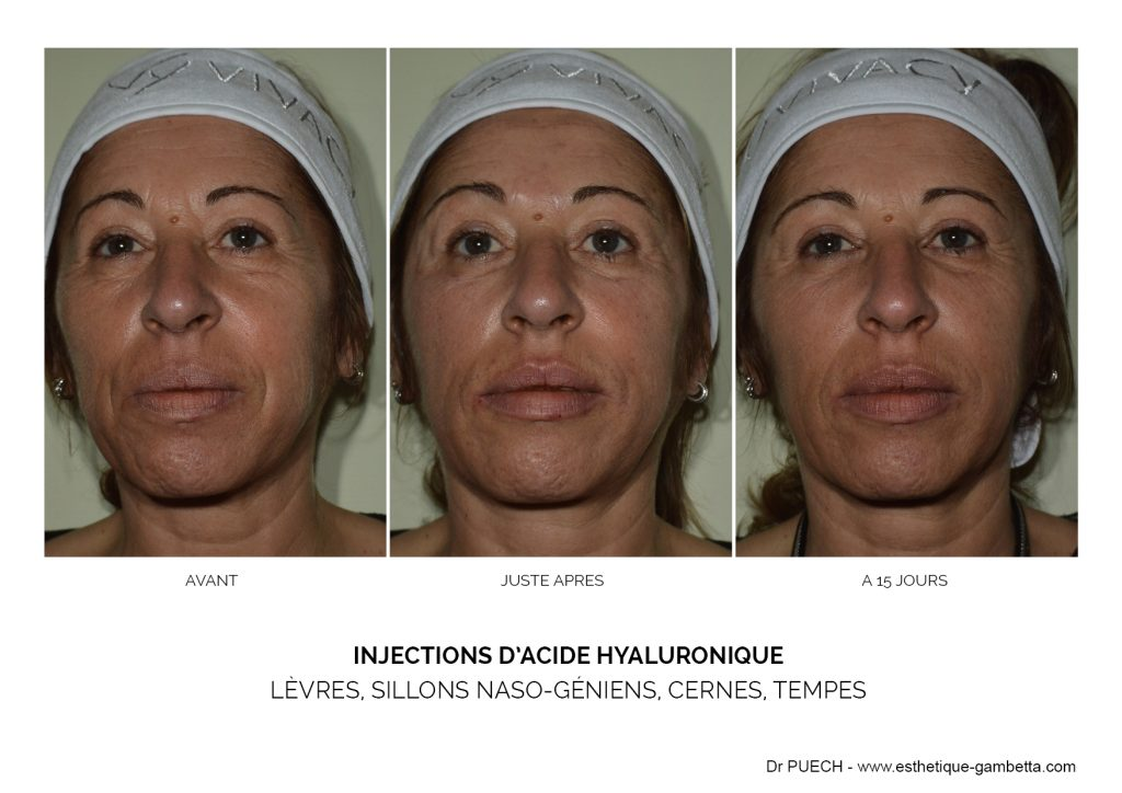 injections acide hyaluronique Foix
