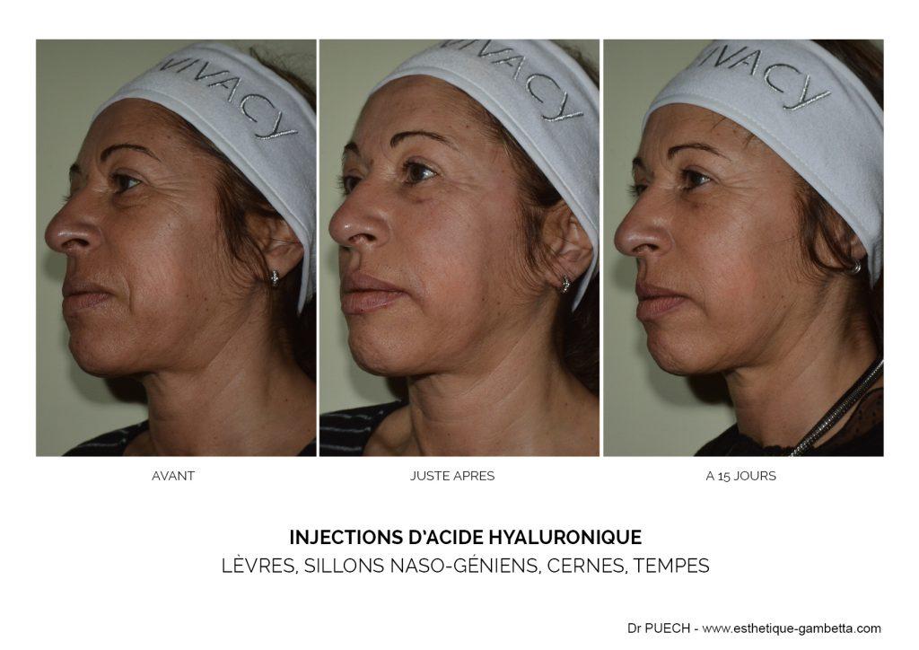 injection acide hyaluronique Foix cernes lèvres