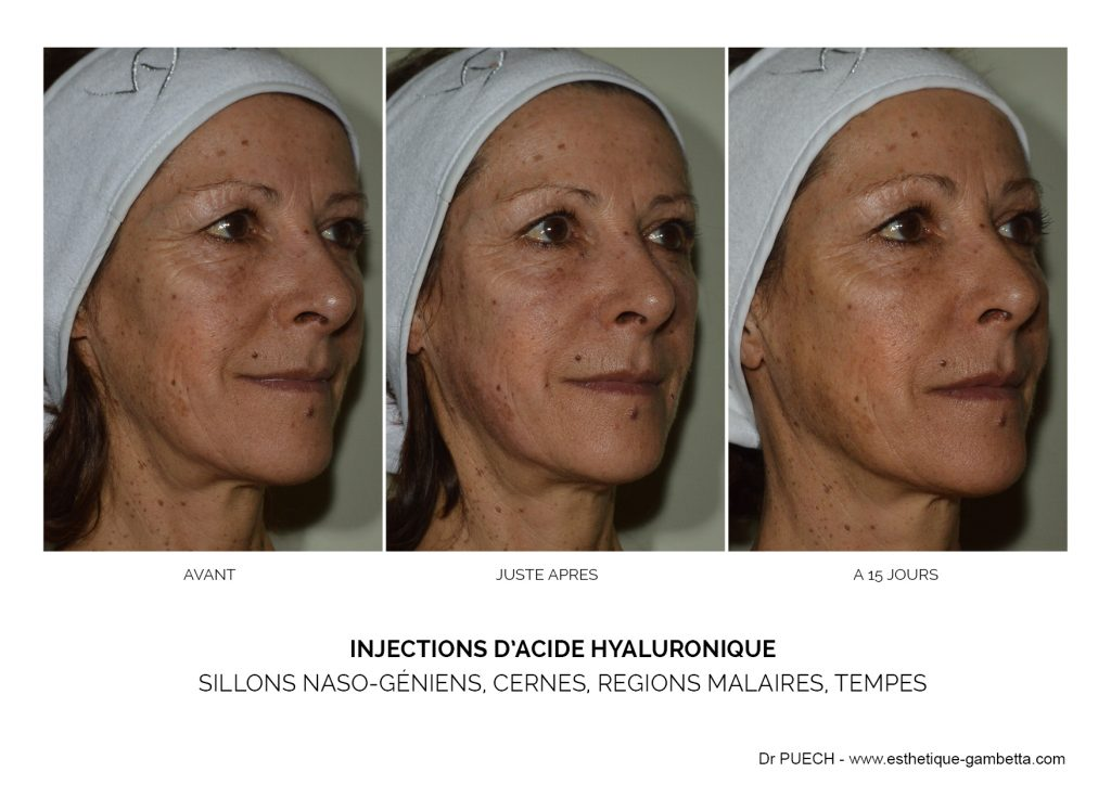 injections acide hyaluronique Balma cernes joues tempes sillons nasogeniens